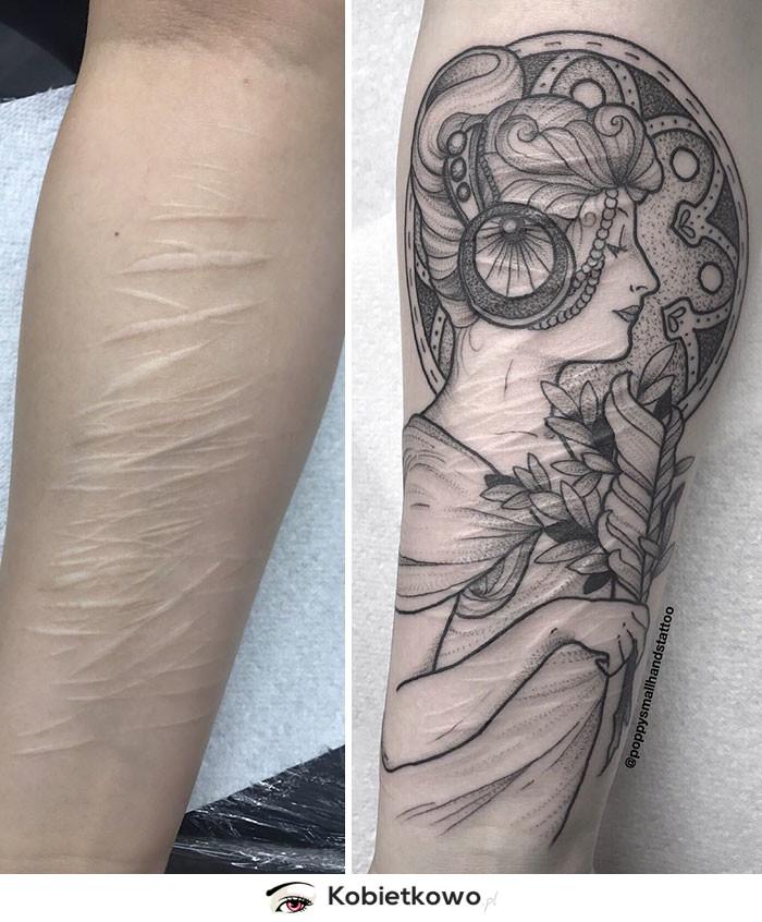 Ta 19 Latka Chciała Ukryć Blizny Po Samookaleczeniu Tatuażem